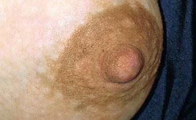 Frauengesundheitsschmerzen haben die Brust verlassen